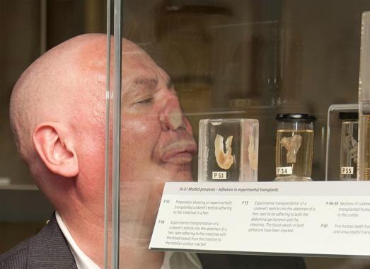 Aaron Williamson presses his nose and mouth to a modern glass cabinet at The Huntarian Museum. The cabinet is filled with medical specimens.